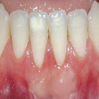 Example 2 after gum treatment
