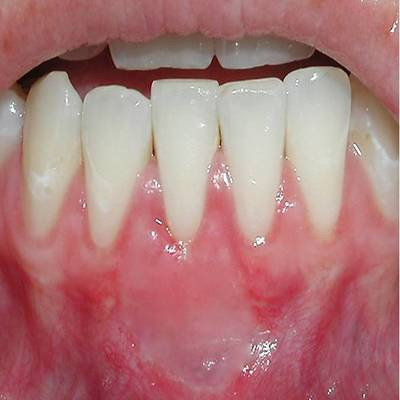 Example 3 after gum treatment