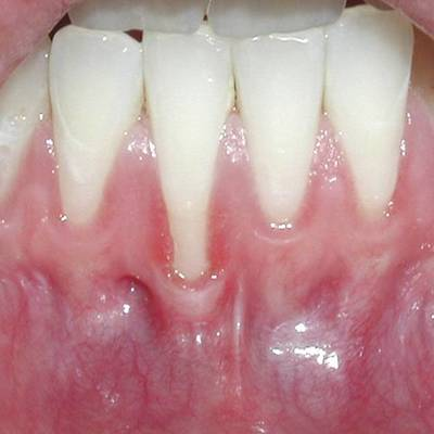 Example 3 before gum treatment