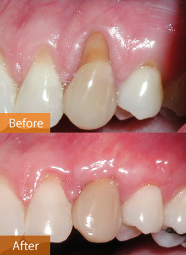 gingival graft 11 before & after