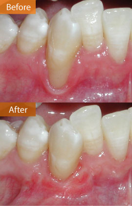 gingival graft 27 before & after