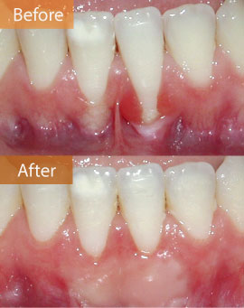 gingival graft LA before & after