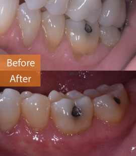 gingival graft LL before & after