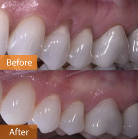 gingival graft UL before & after