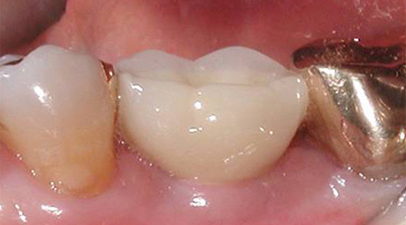 After implants placement teeth at Implant and Periodontal Wellness Center of Arizona