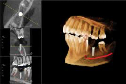 Dental x-ray of a full mouth at Implant and Periodontal Wellness Center of Arizona