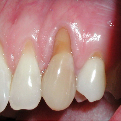 Example 1 before gum treatment