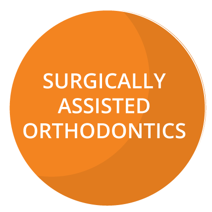 Surgically Assisted Orthodontics