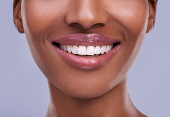 a smiling patient who had crown lengthening from Implant and Periodontal Wellness Center of Arizona