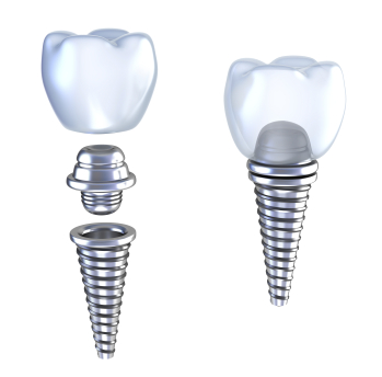 Dental implant assembly diagram from Implant and Periodontal Wellness Center of Arizona