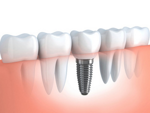 Computer generated model of dental implant in Phoenix, AZ from Implant and Periodontal Wellness Center of Arizona