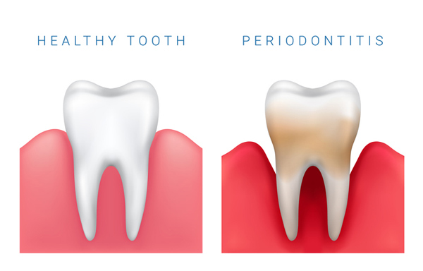 Computer generated model of healthy tooth and one with periodontitis disease which can cured with osseous surgery in Phoenix, AZ from Implant and Periodontal Wellness Center of Arizona